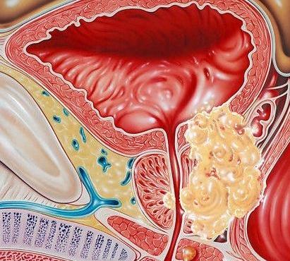 Рак предстательной железы история болезни