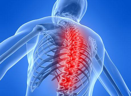 Остеопороз у женщин: лечение, симптомы, диета