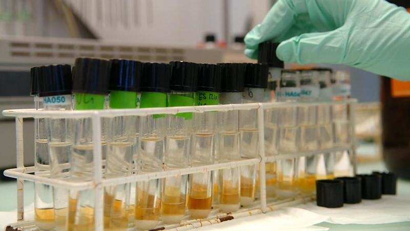 Бактериологический профиль проб мочи у пациентов с ДГПЖ, простатитом и СНМП