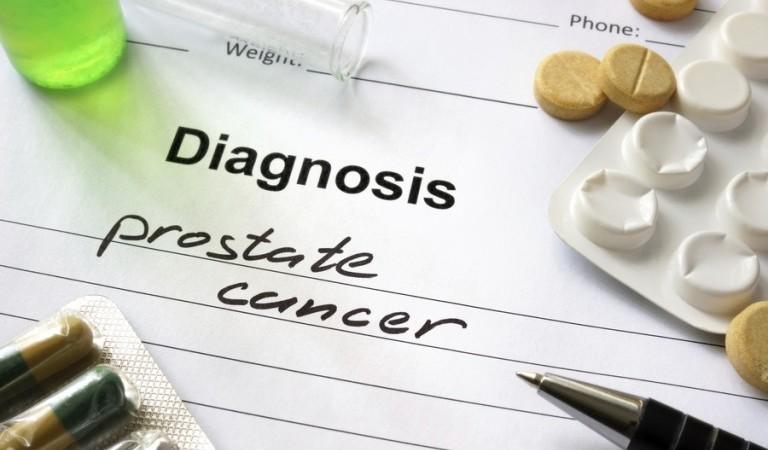 Влияние андрогенной депривационной терапии на длину теломер