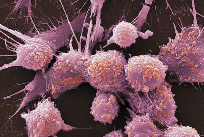 Рак предстательной железы у больных с BRCA в анамнезе