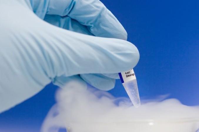 Рекомендации по криоконсервации сперматозоидов у мужчин с герминогенными опухолями яичка