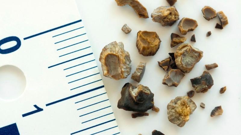 Анализ химического состава камня, что в будущем?