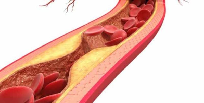 Связь между мочекаменной болезнью и кальцинацией коронарных артерий