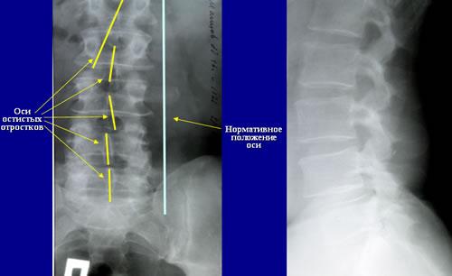 спондилез пояснично-крестцового отдела позвоночника, деформация тел позвонков.