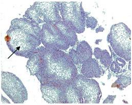 Плоскоклеточная метаплазия с участками кератинизации (лейкоплакия мочевого пузыря). Увеличение х 200, окраска гематоксилин-эозином.