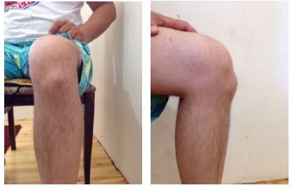 Болезнь шляттера внешний вид коленного сустава тип сустава по графу 2б