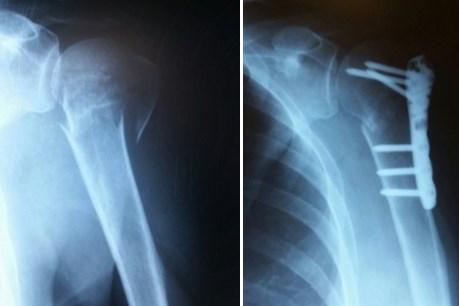 вывих плечевого сустава с переломом бугорка